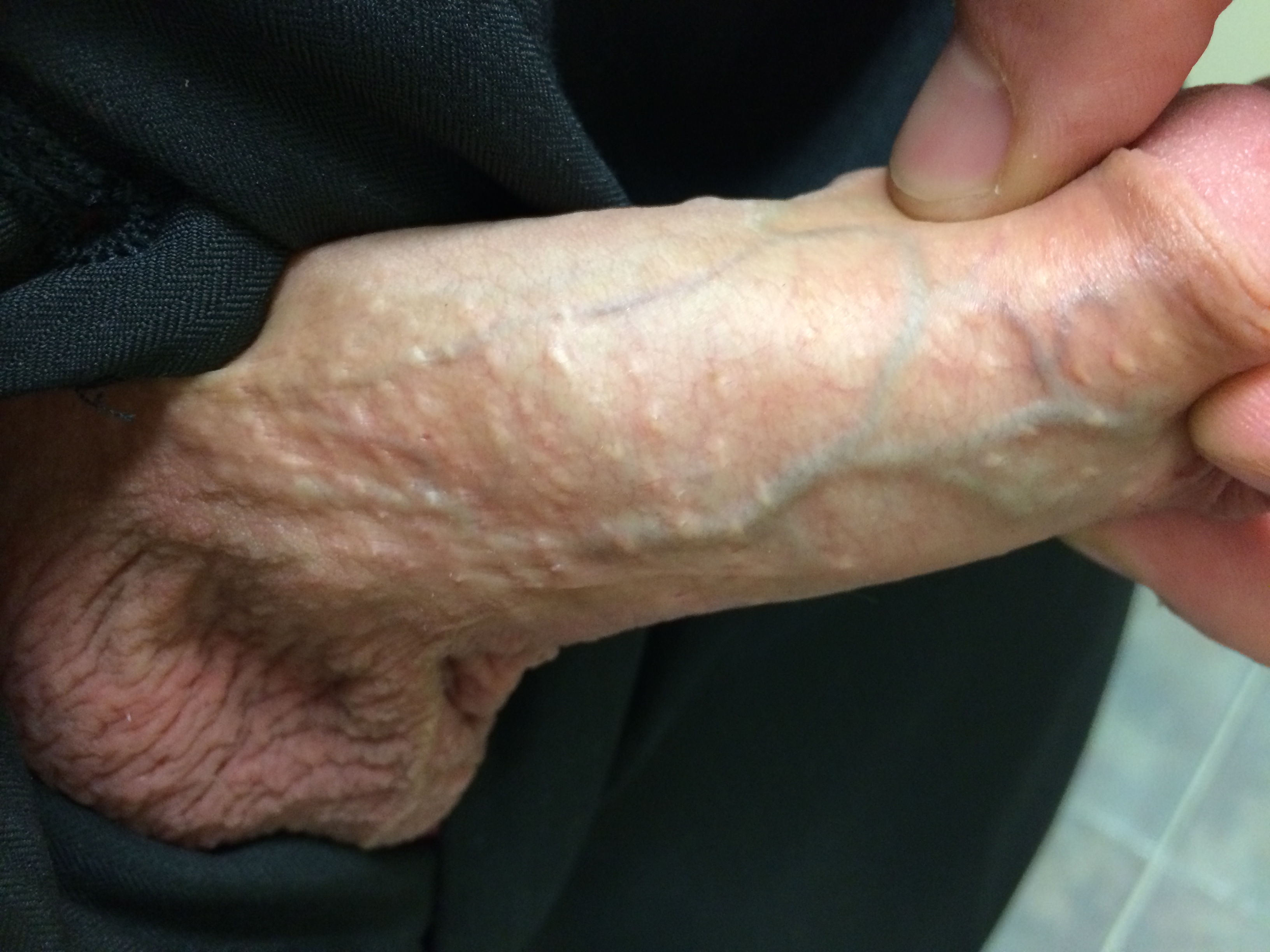 Small white spots on penis