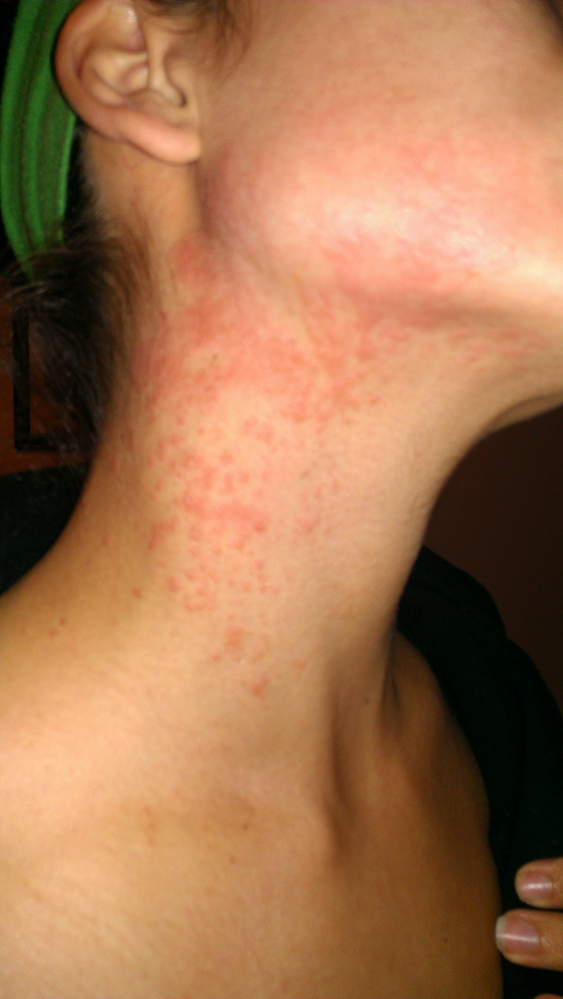 rash on my neck