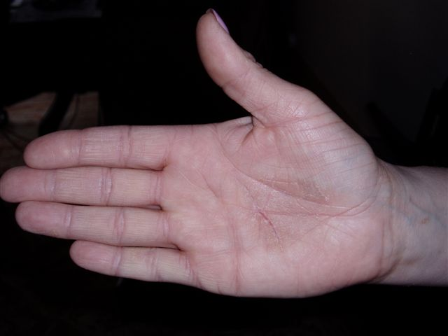 Dry red patch on palm of hand