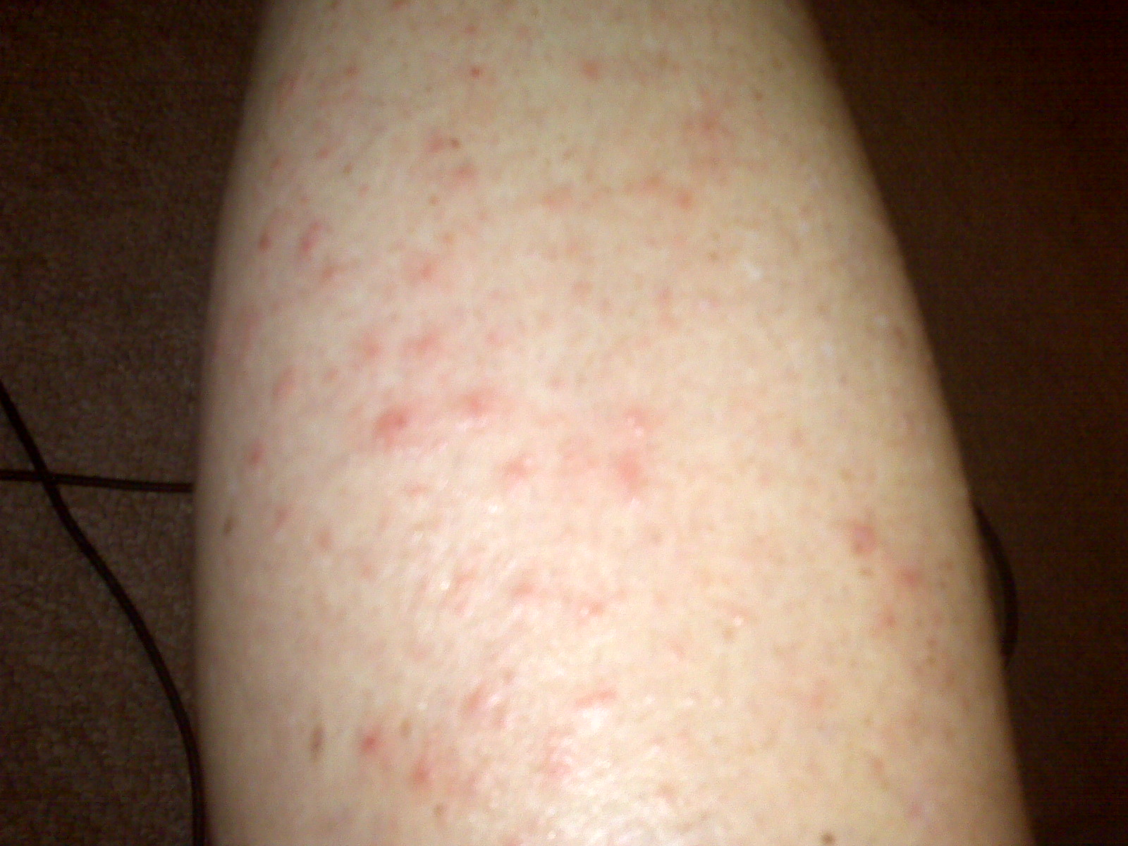 rash on back of leg #9