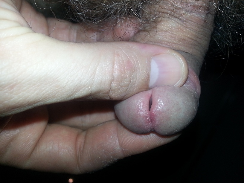 Penis psoriasis usually appears as many small, red patches on the tip of the penis or the penis shaft 3
