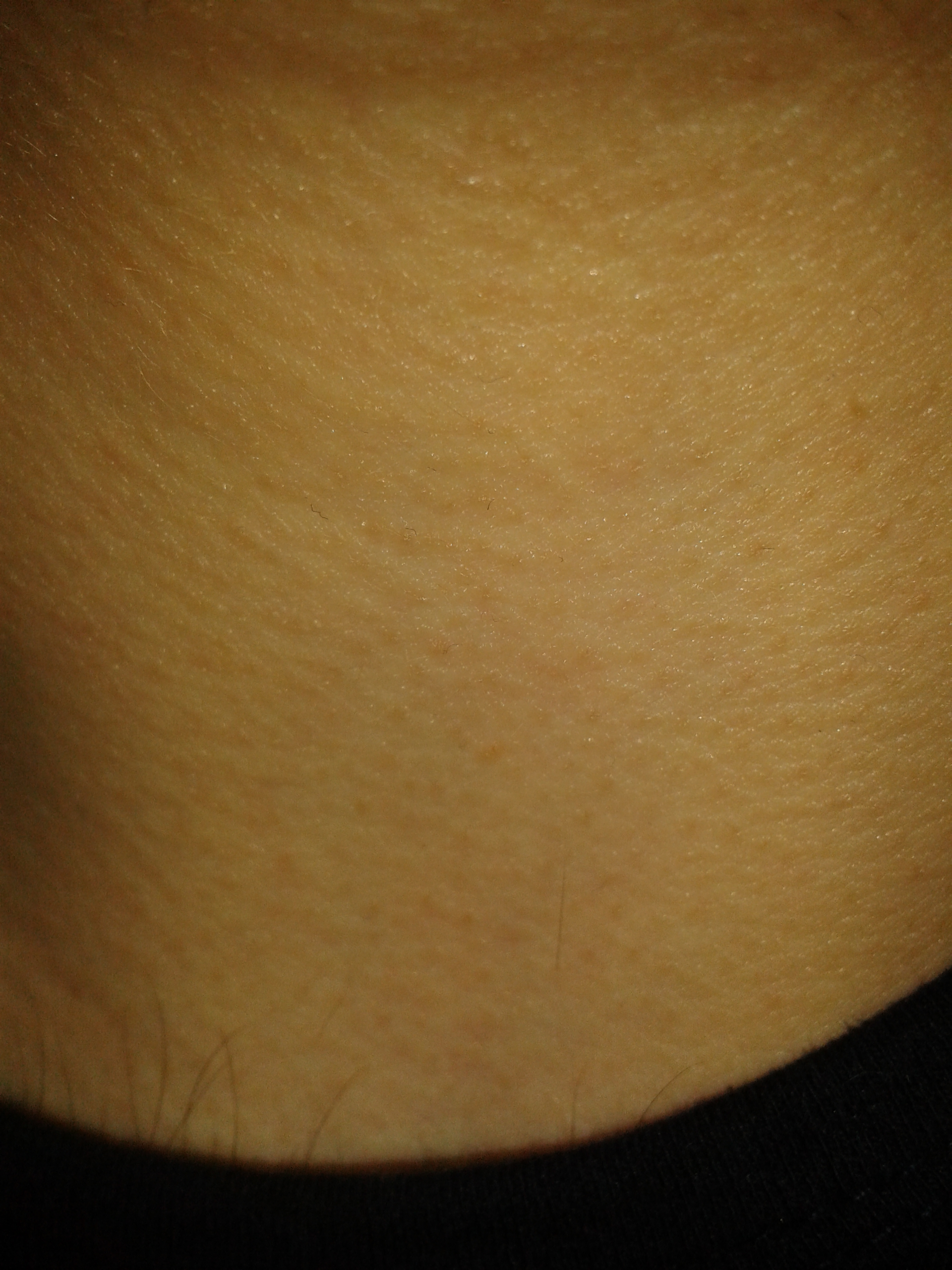 Permanent skin-colored raised bumps