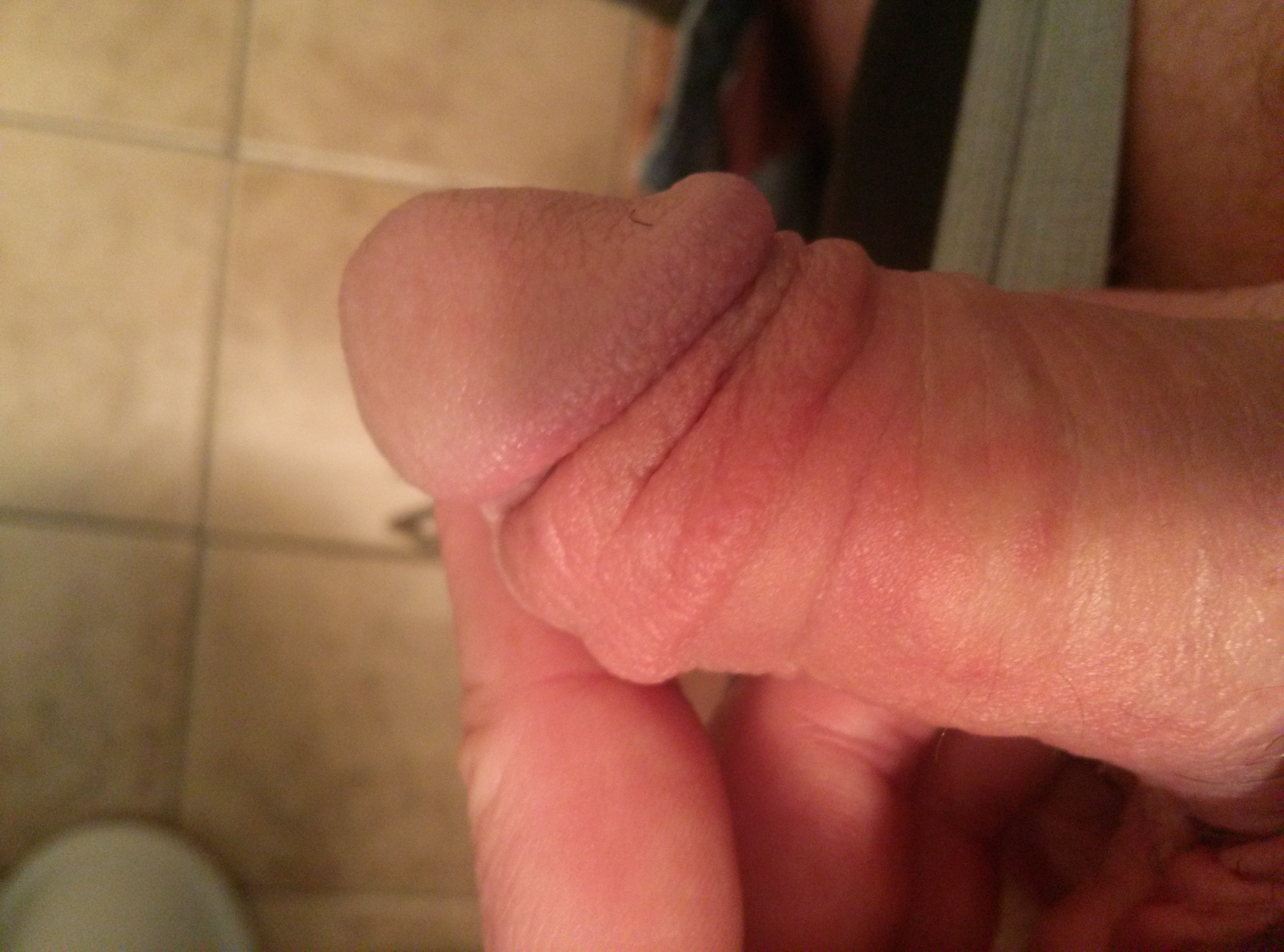 Mosquito bite on penis or cock