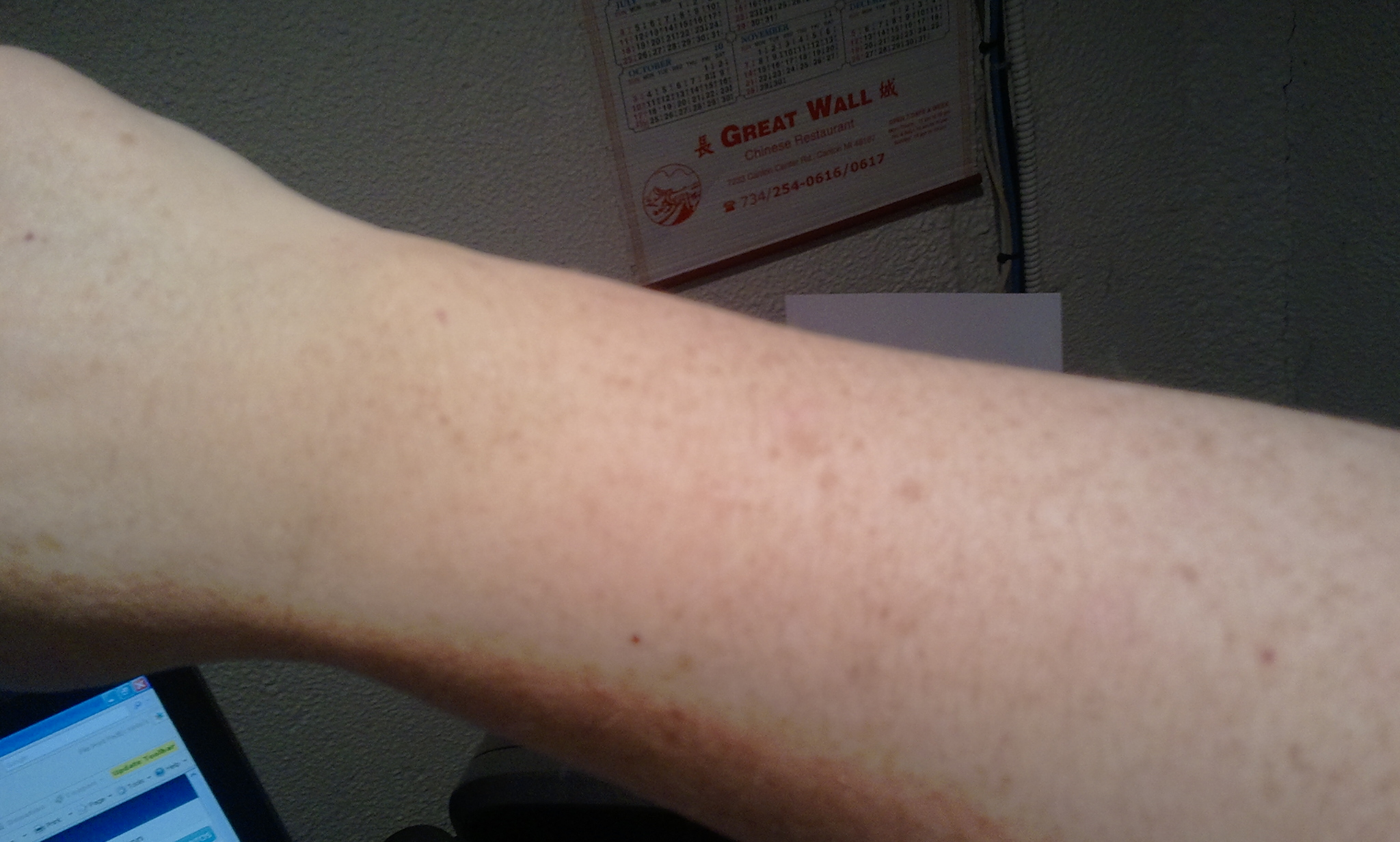 Had one small dark red little skin spot on my arm i noticed