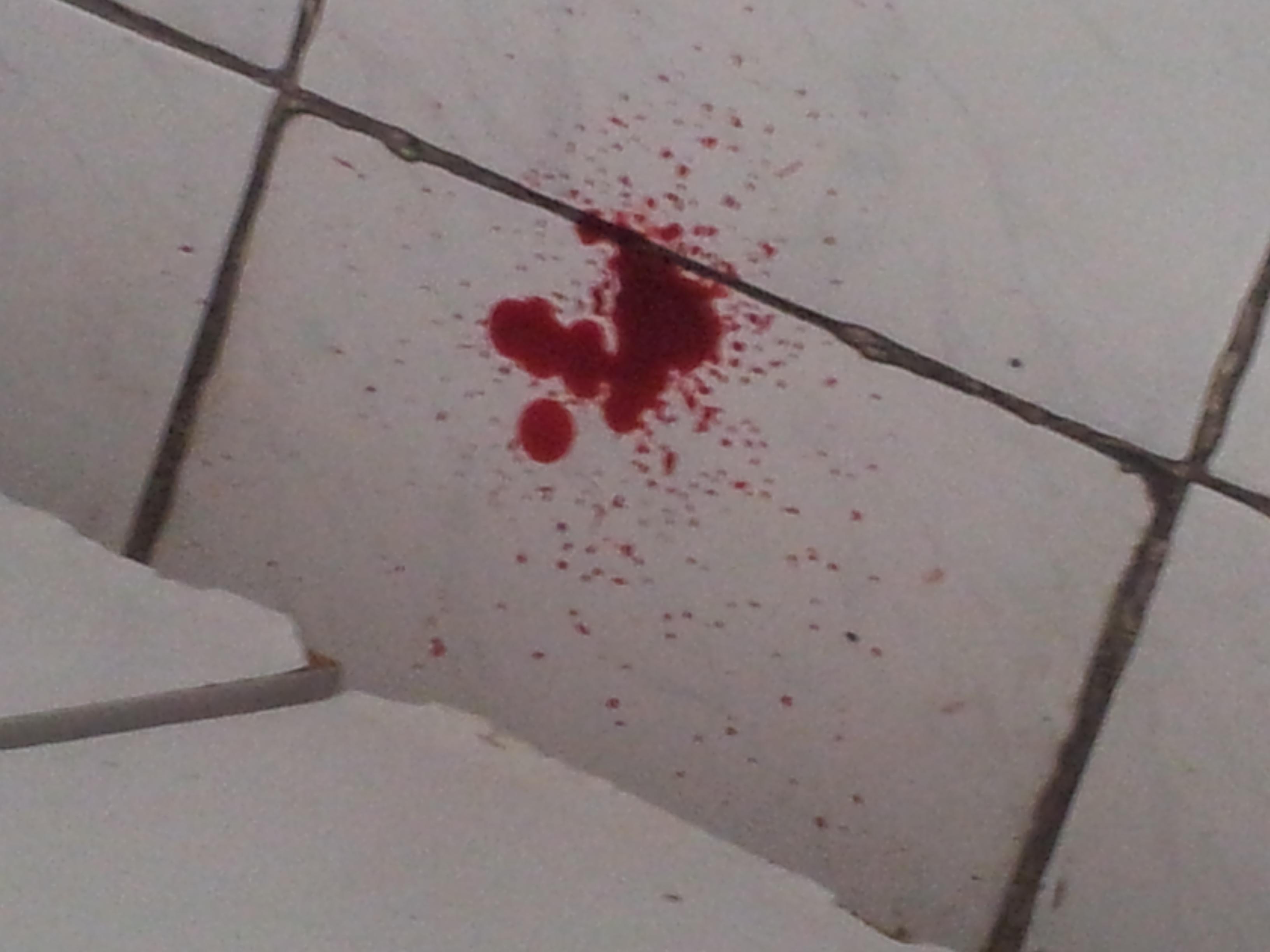 sangrado hoy mientras me afeitaba