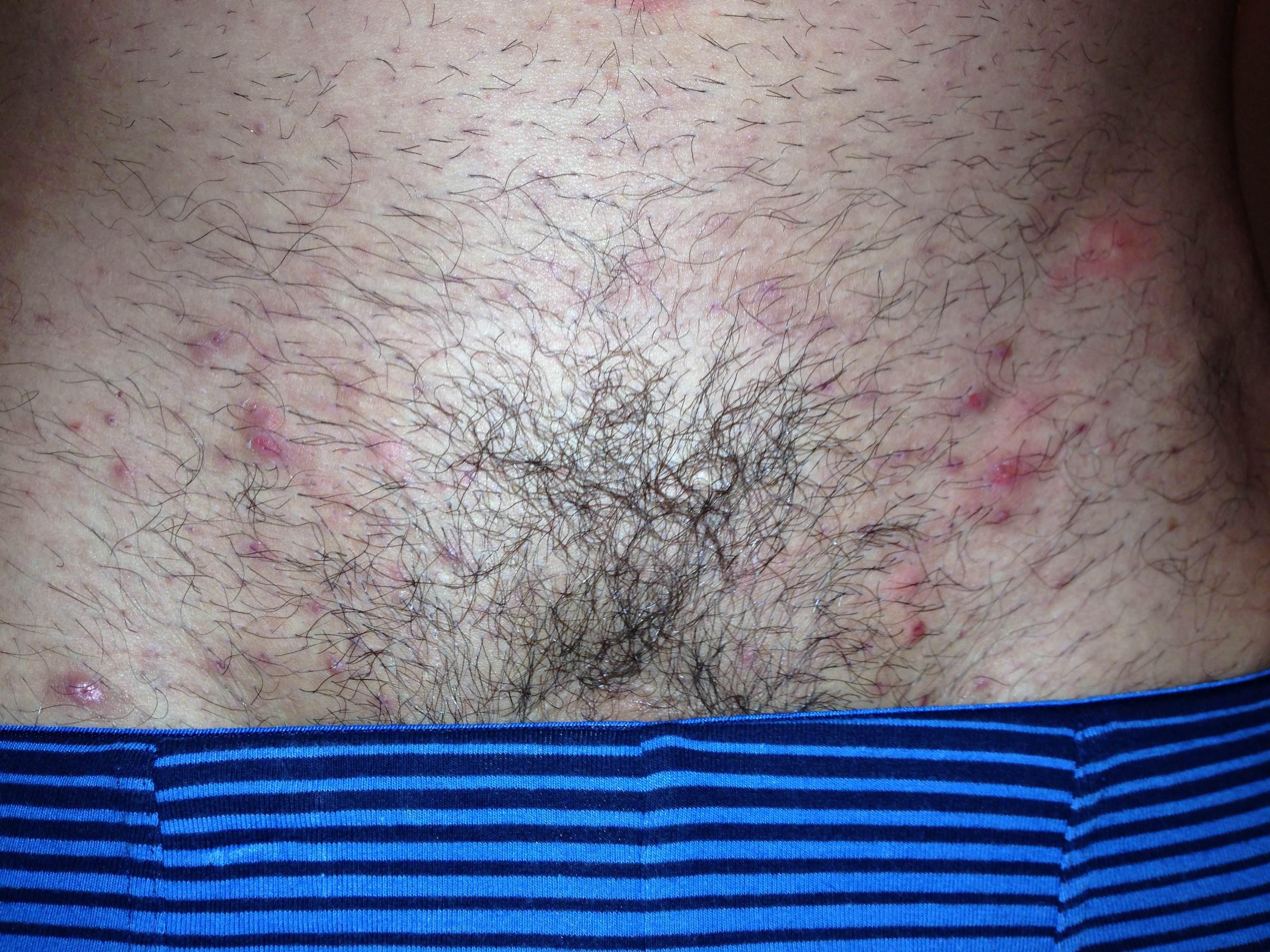 Ingrown pubic hair - Ingrown Hair In Pubic Area Ingrown Hair On Pubic Area