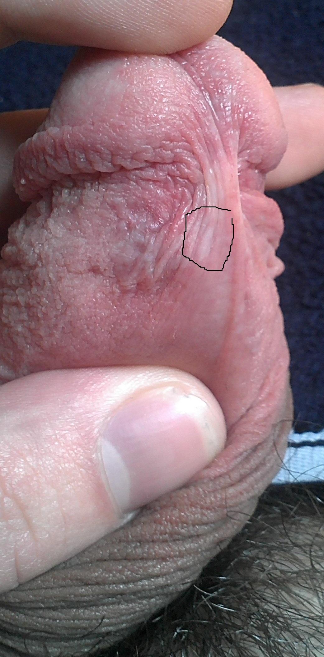 penis papules photos