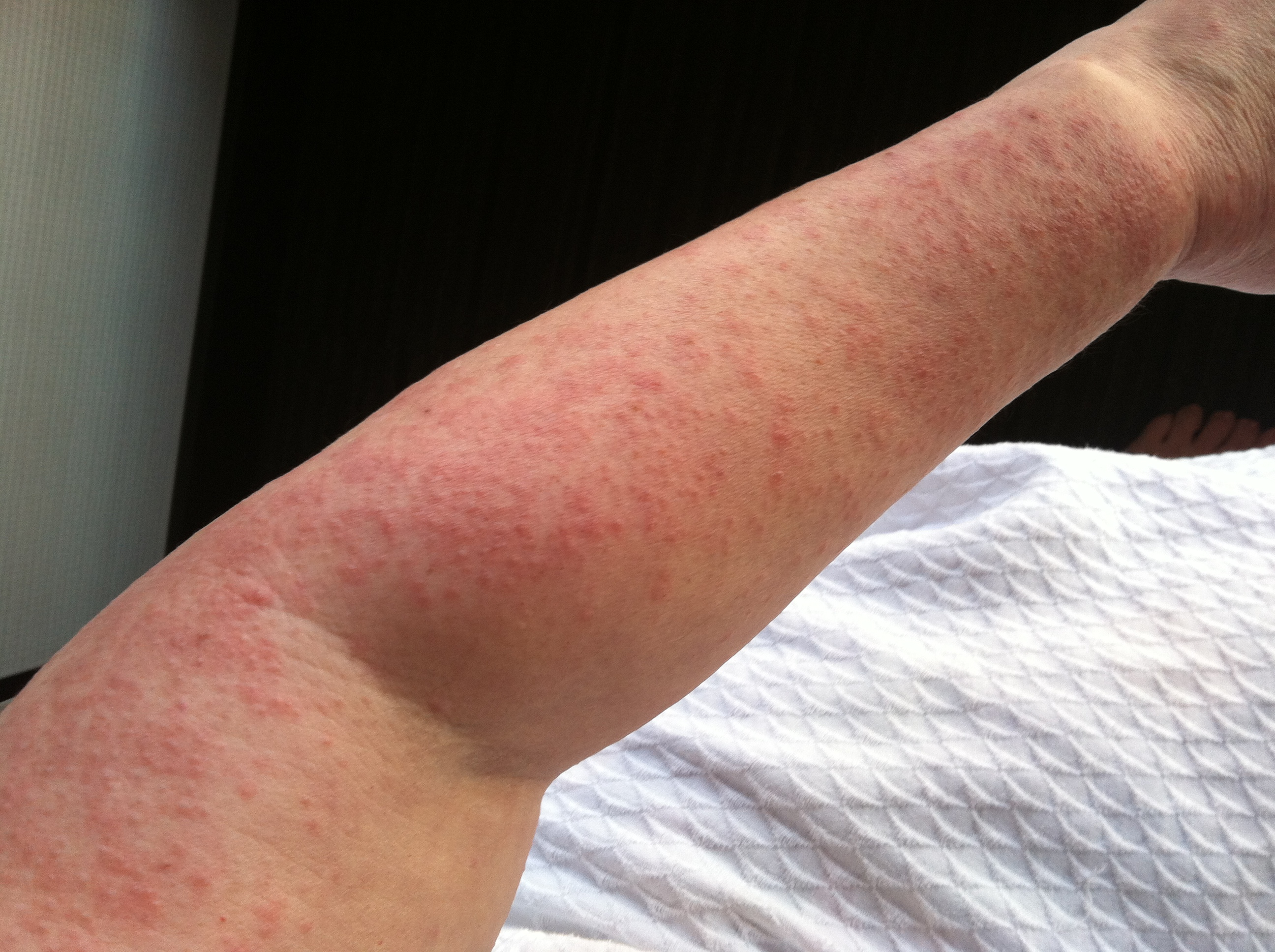 RashResource - Skin Rashes Pictures Symptoms and Treatment
