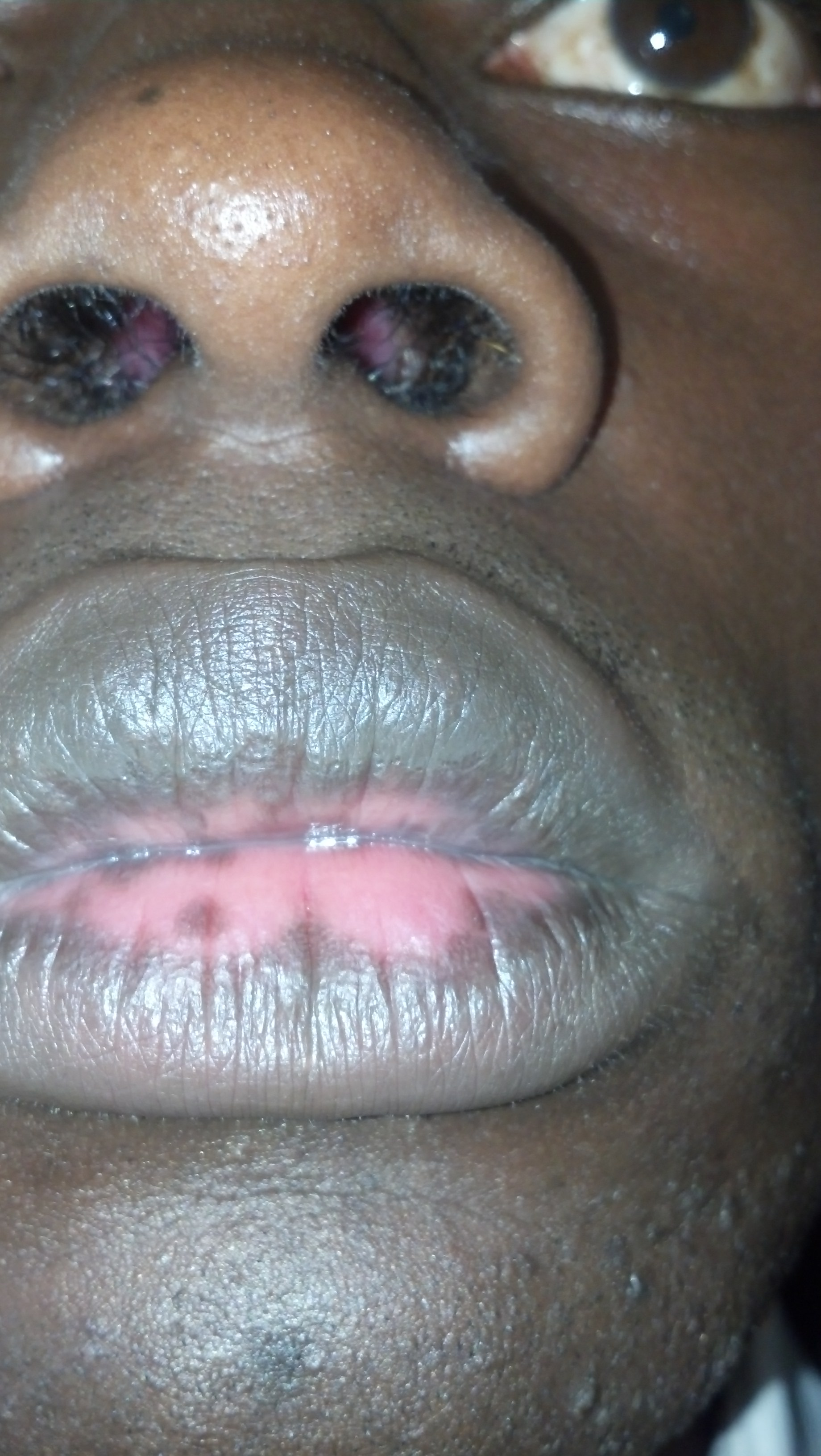 Hello Dr., parts of my lips have changed color from black to