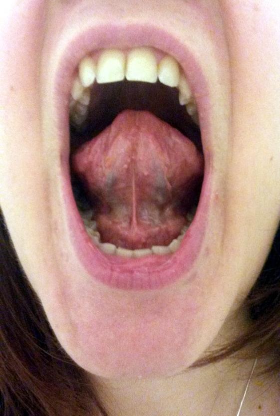 Normal Tongue - Bing images