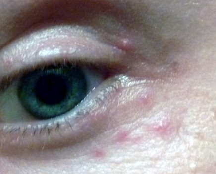 Eye rash / bumps on outer corners