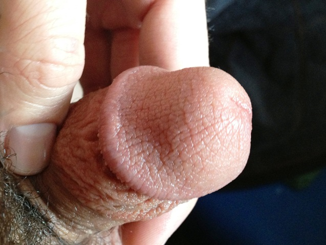 How to remove upper skin of penis? Yahoo Answers