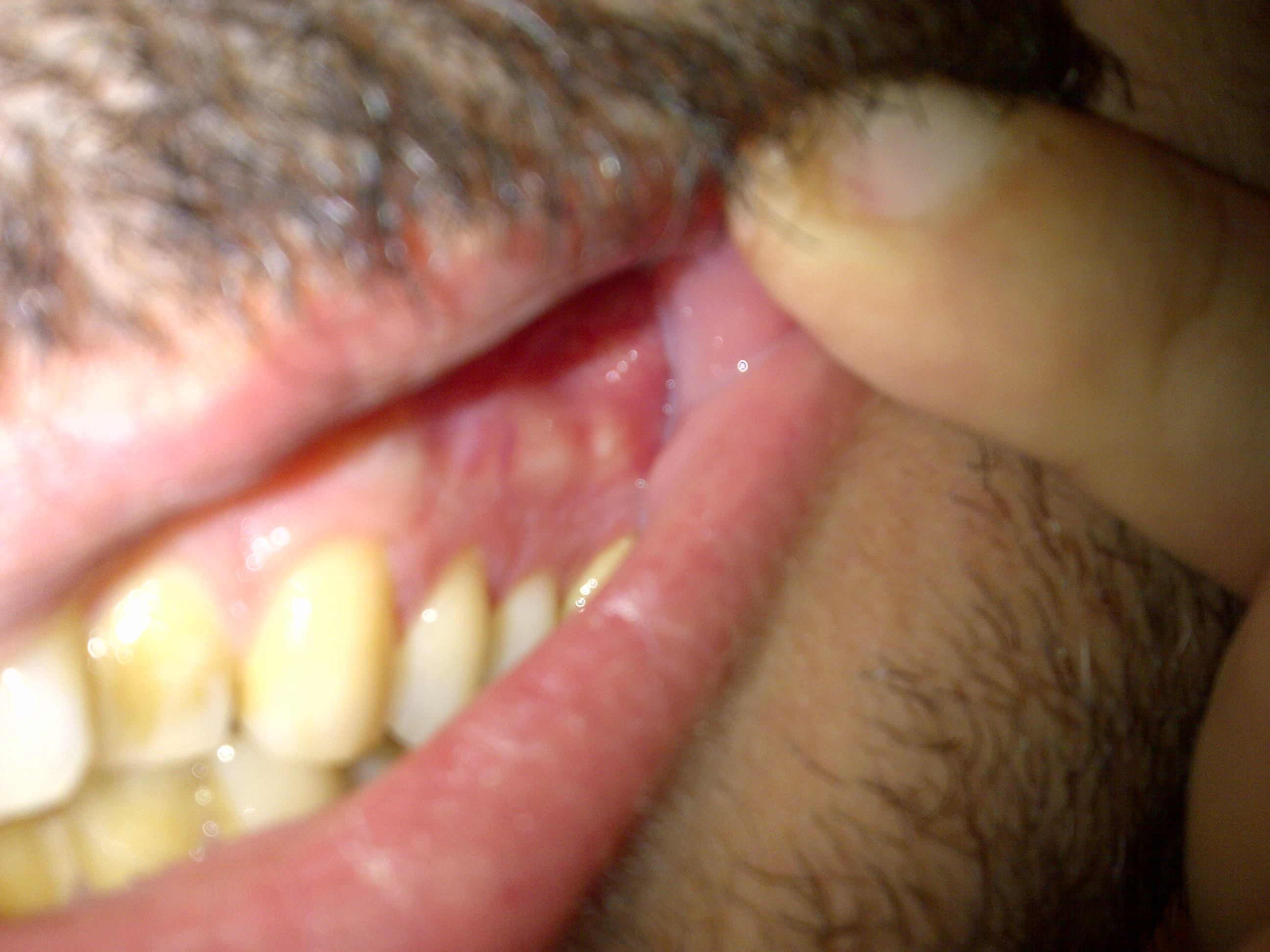 The gallery for --> Plica Sublingualis Swelling