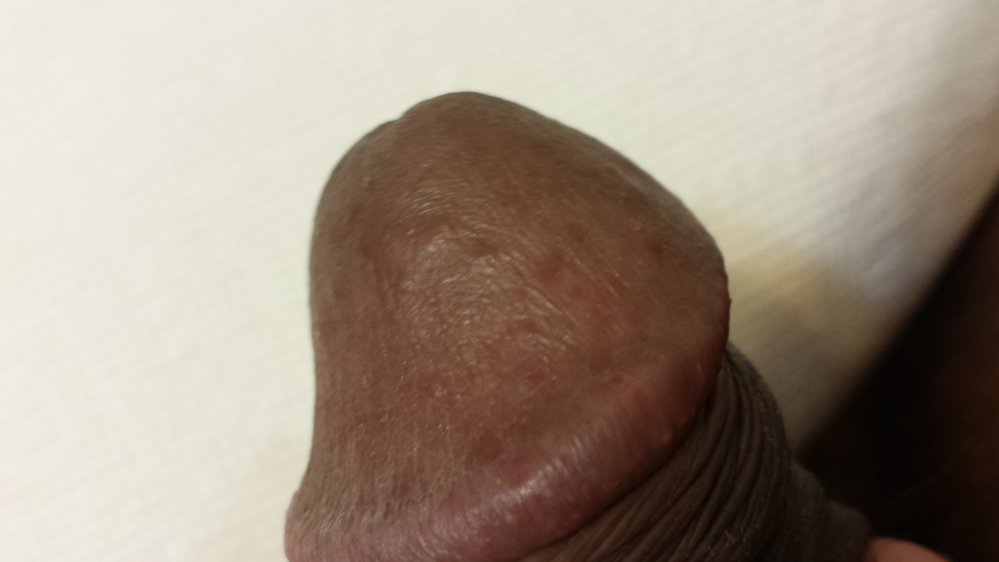 red dots on head of penis