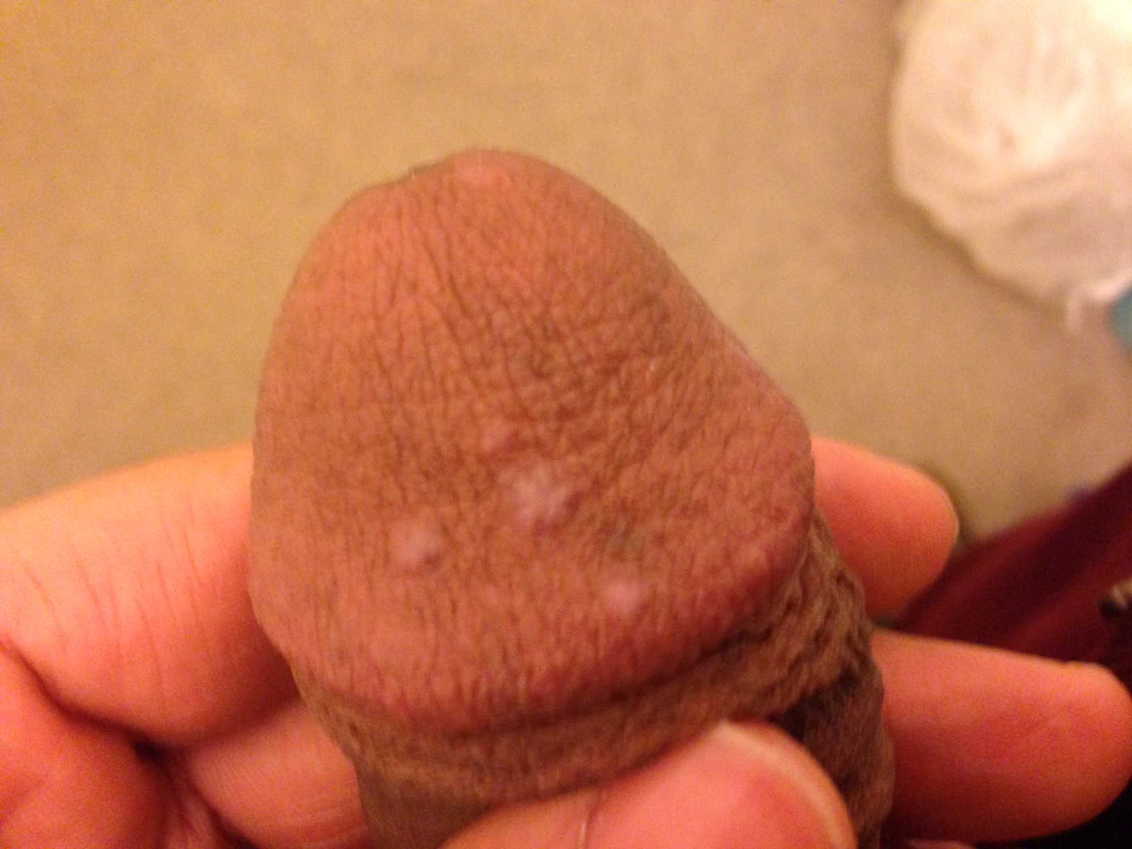 sore and spotty penis after sex