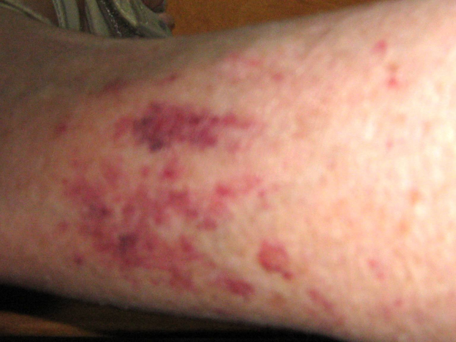 Rashes and Cancer - Itchy Skin Rash