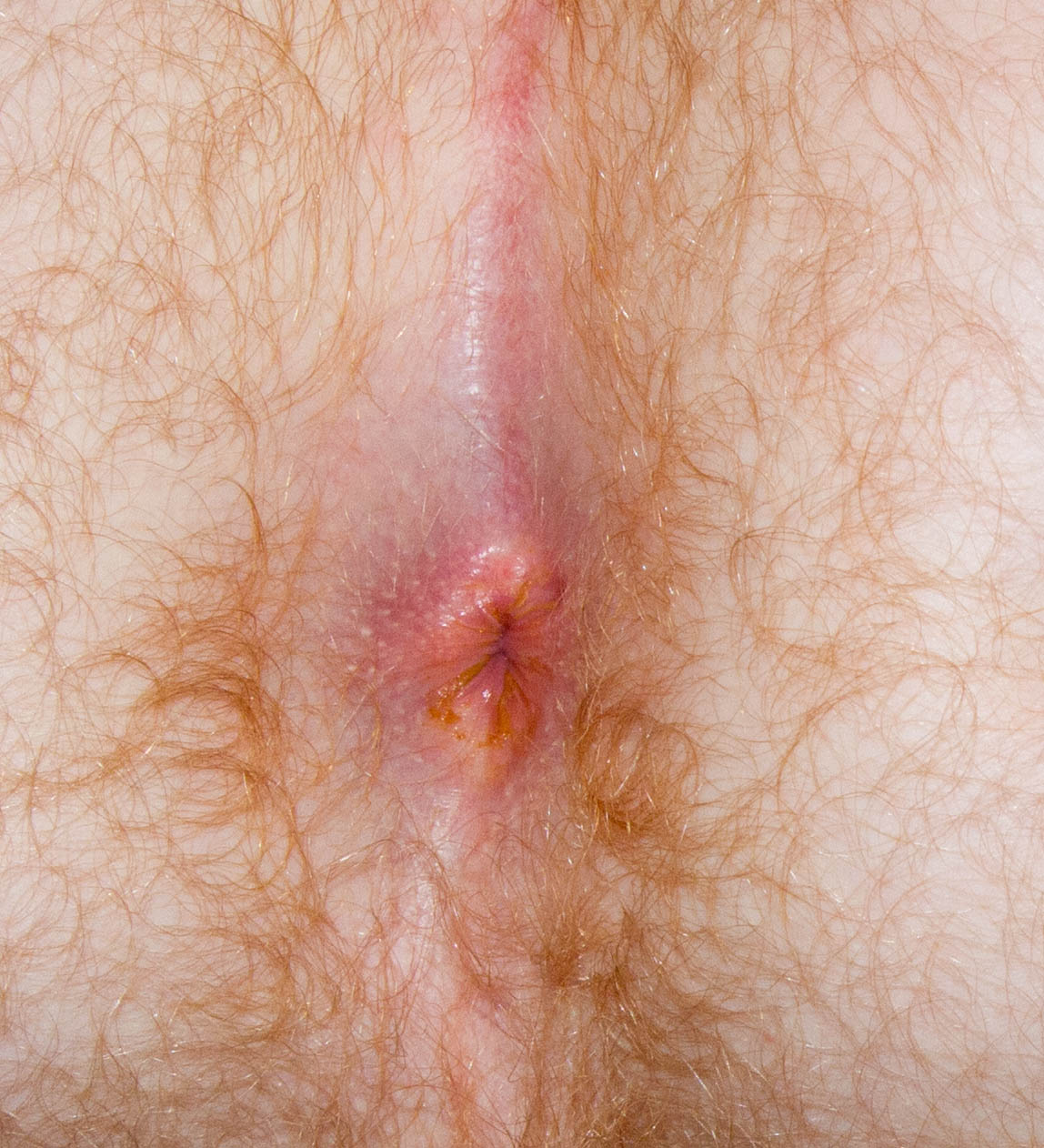 Causes of anal itching