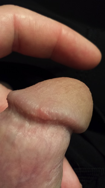 Warts on my dick