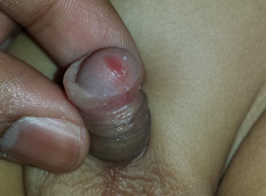 irritated pee hole