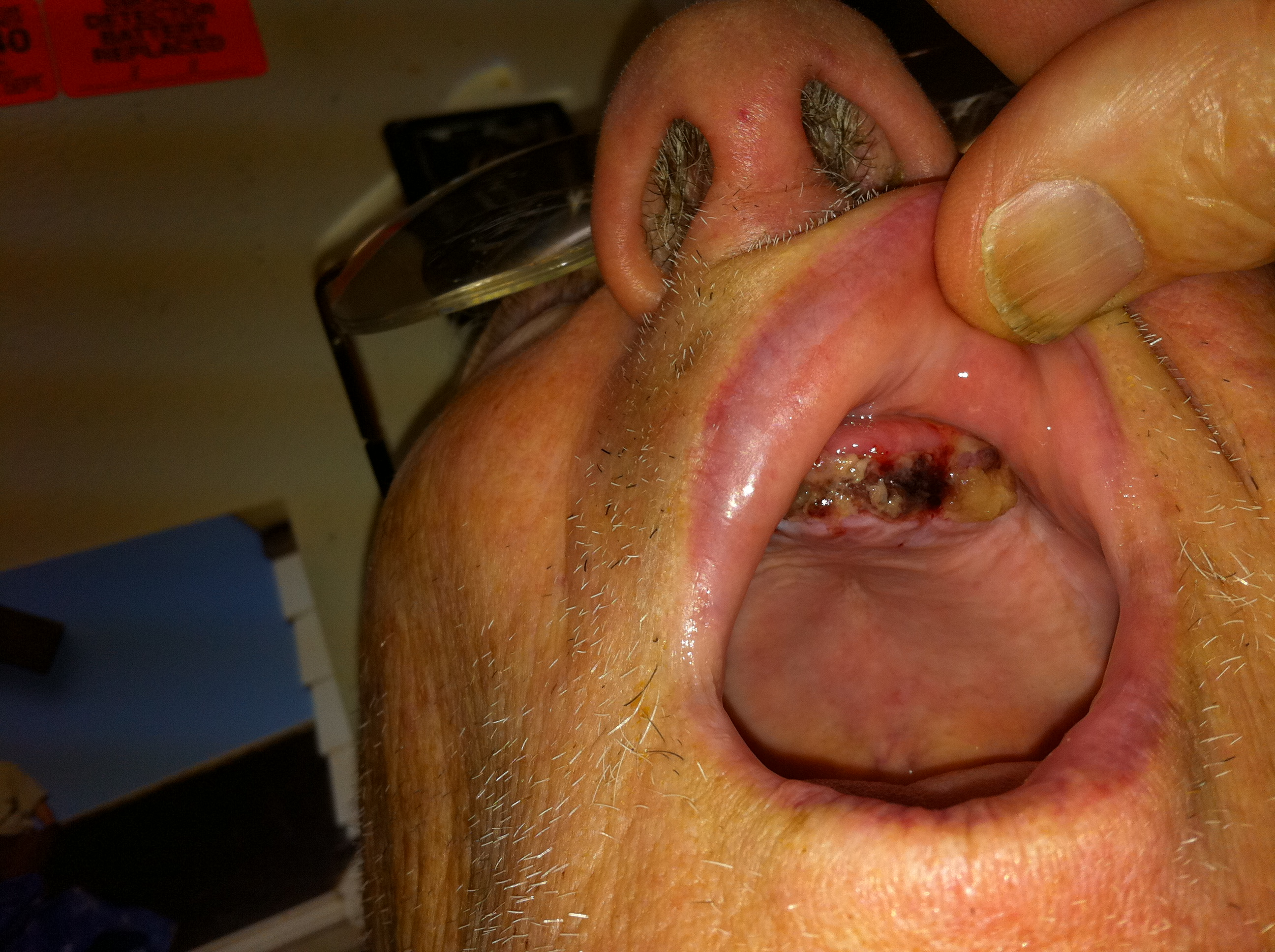 Photos Of Normal Healing Of Tooth Extraction | Rachael Edwards