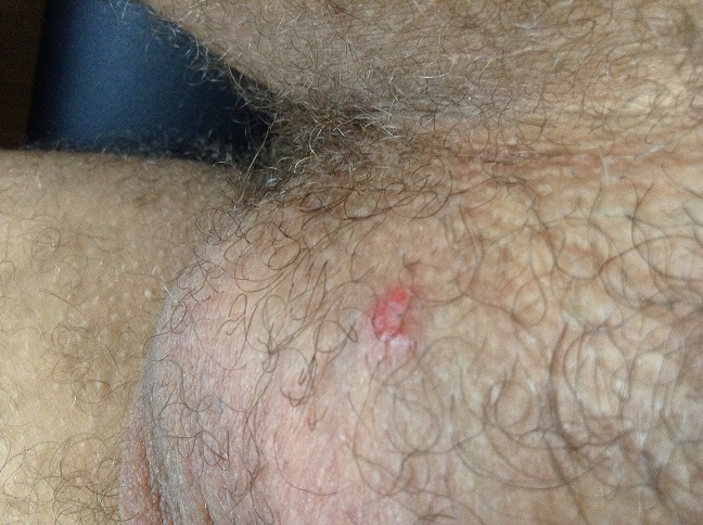 Red Pimple On Testicle - Doctor answers on HealthTap