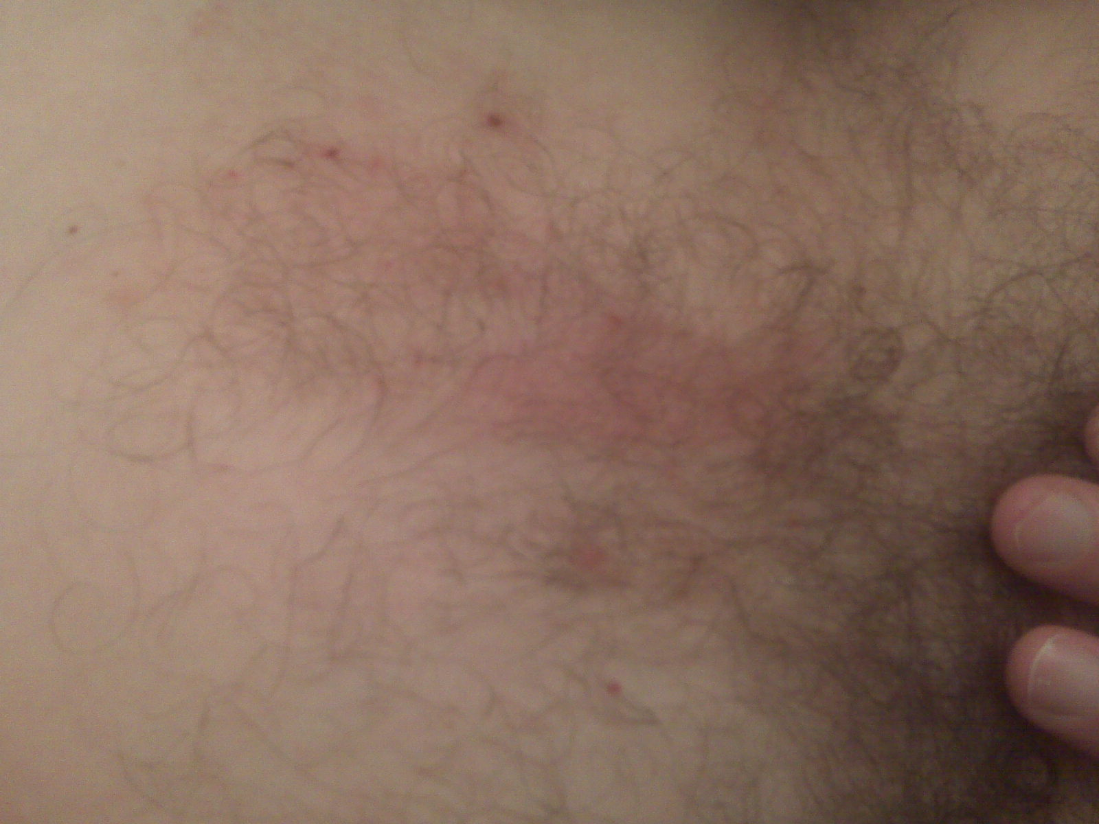 thigh do not coorespond with sweat. I currently have no rash under my