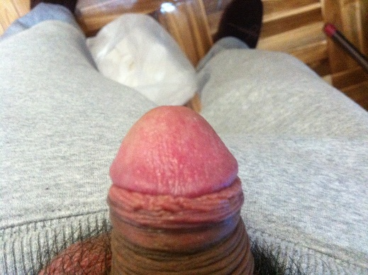 A small ball under the skin of the penis