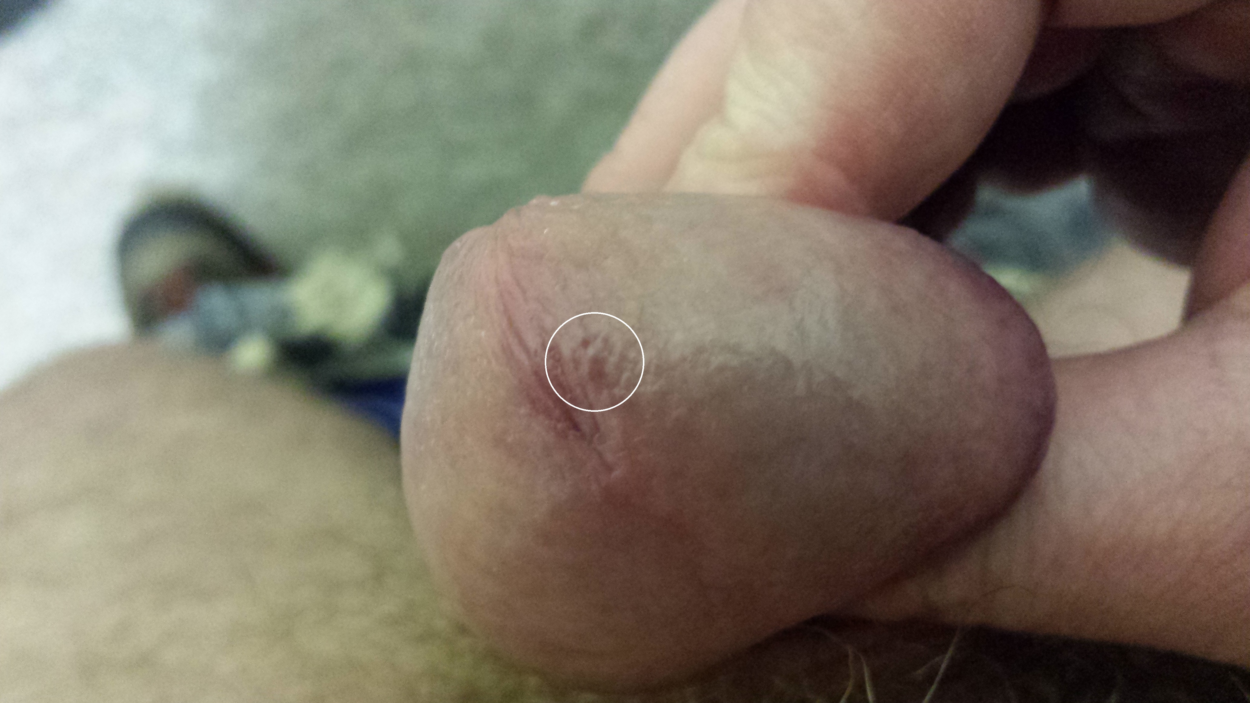 Small pimples on the penis itch
