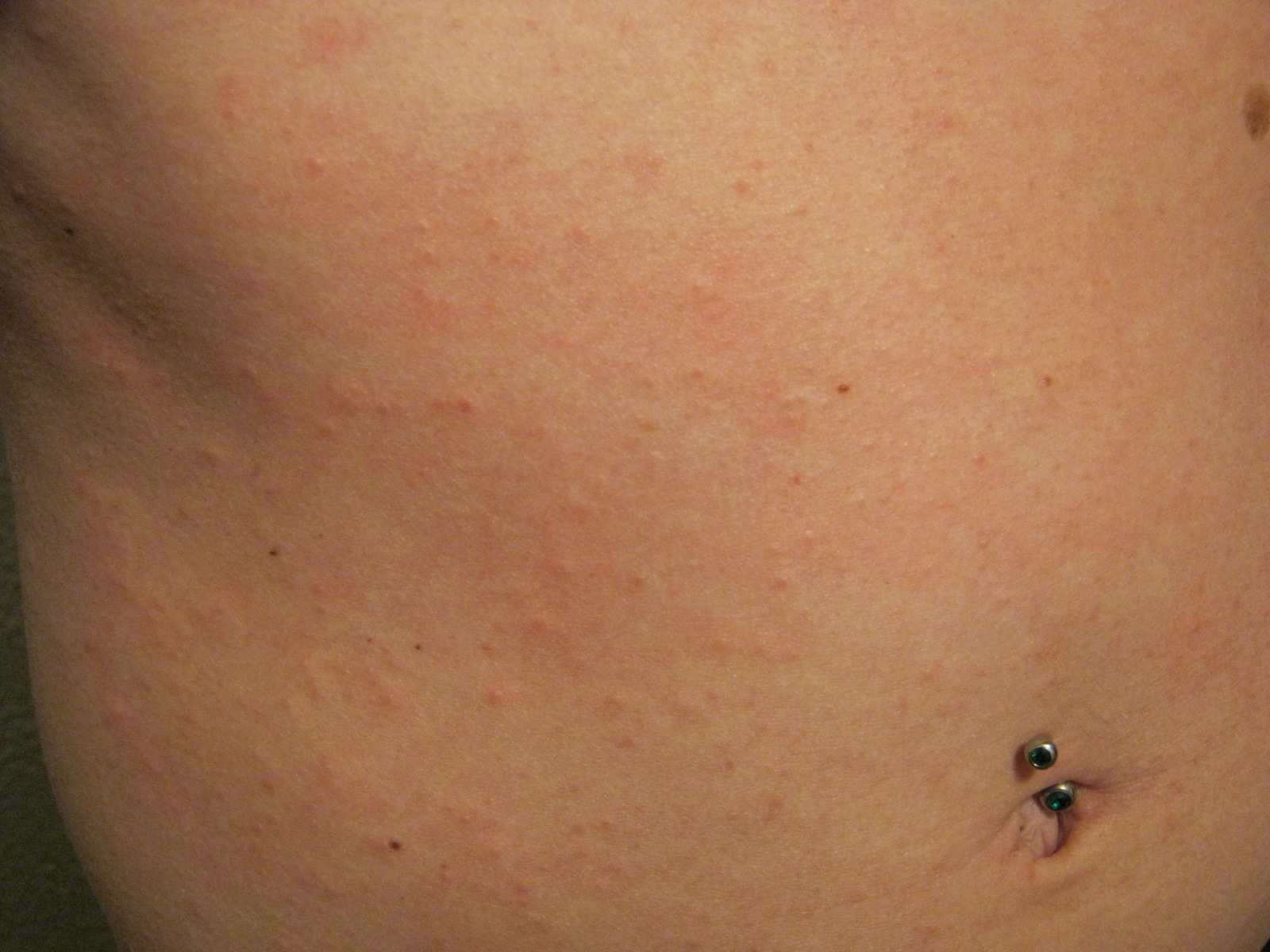 red rash on torso - Dermatology - MedHelp