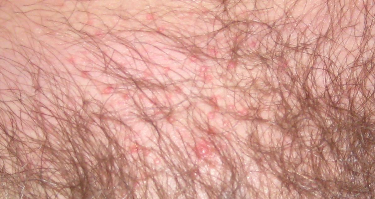 rash on pubic area - MedHelp