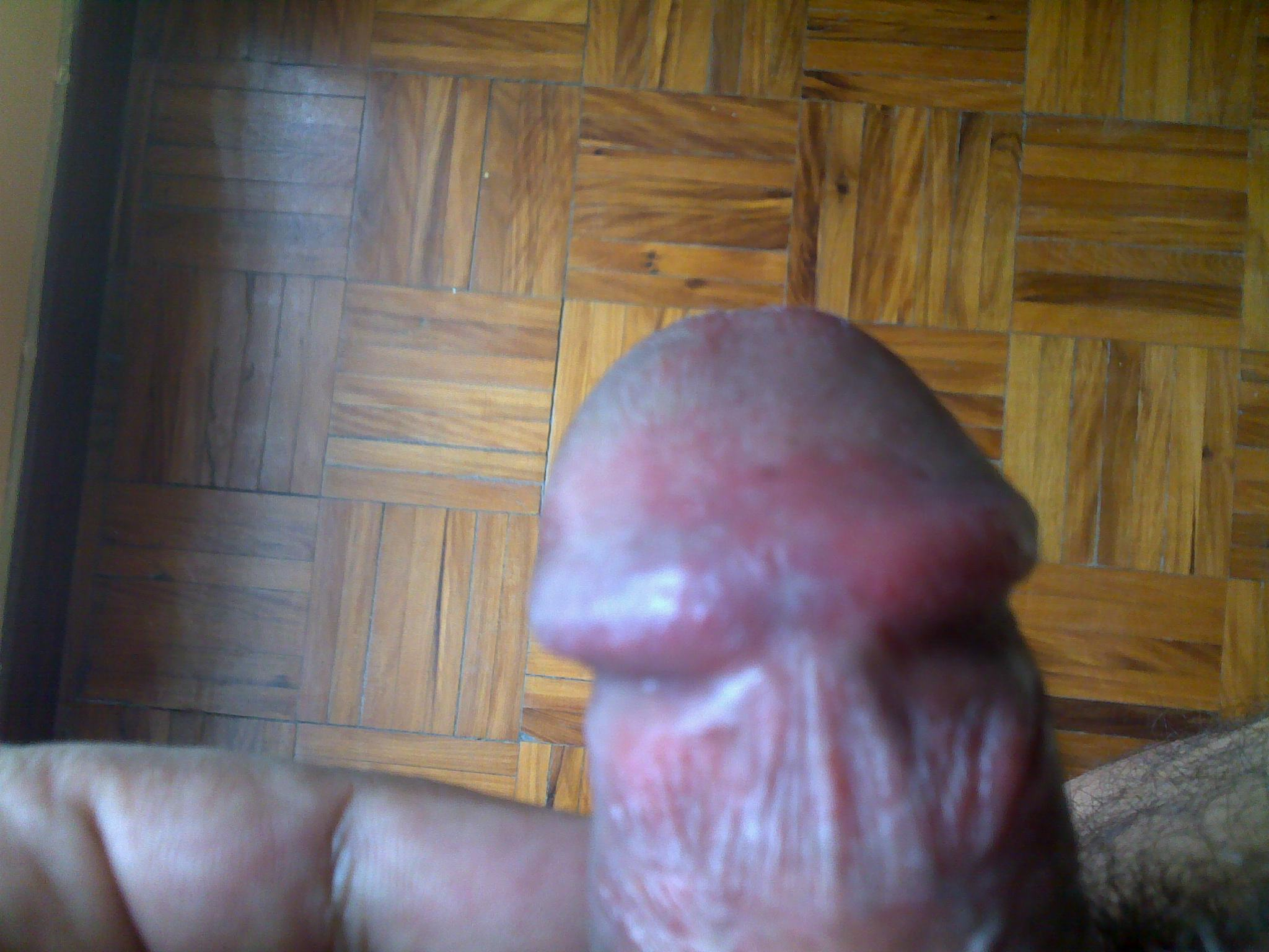 Red patch on tip of penis