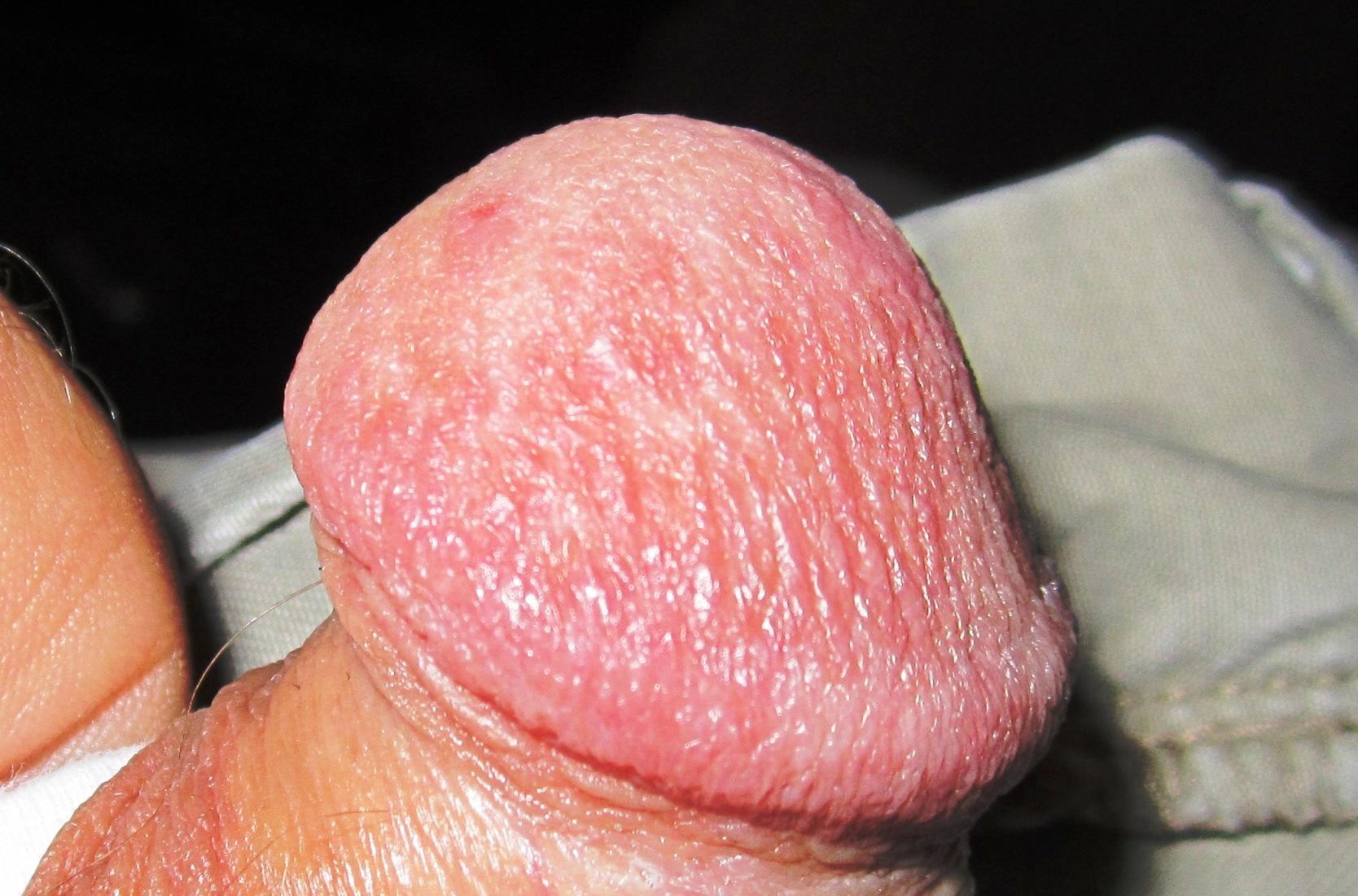 triamcinolone for penis