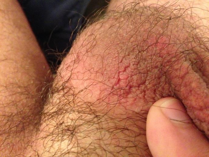 Scrotum eczema | DailyStrength
