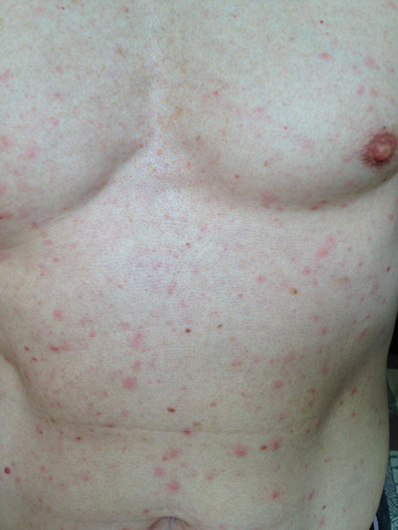rash that looks like acne #11