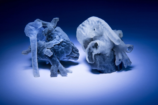 3D Printed Heart Model for Surgery