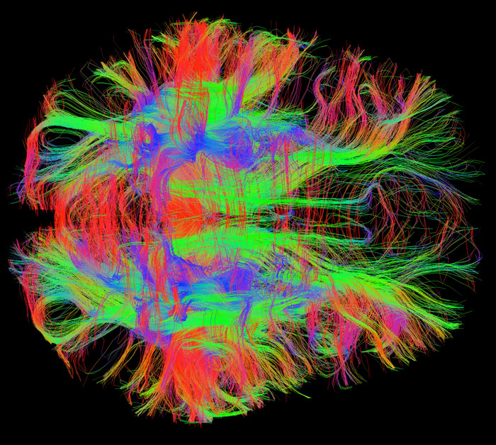map of neural pathways in the brain