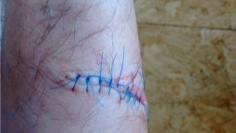 Injury-5