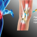 Orthopedics – A trend toward less surgery