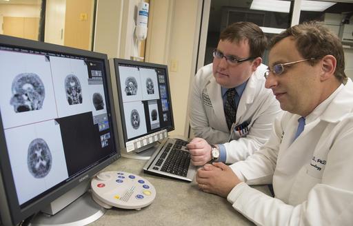 Brain scans find protein a marker of Alzheimer's decline