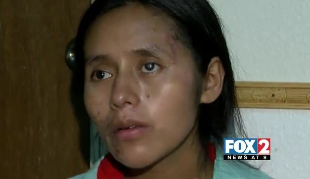 Pregnant Undocumented Immigrant Out of Coma After Roll Over