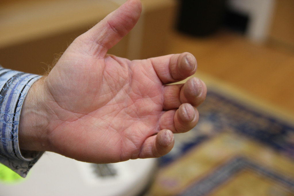 Couldn't resist posting this close up of David's fretting hand. Callouses like this don't lie.
