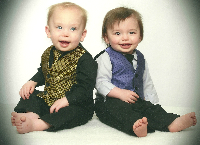 Treatment for twins with Milroys Disease