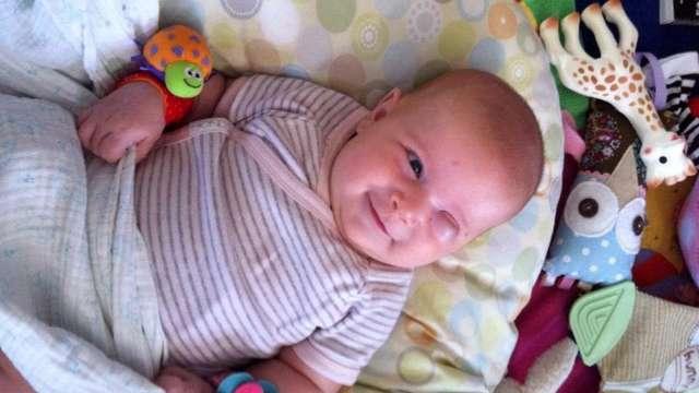Help baby Josie get a prosthetic eye.