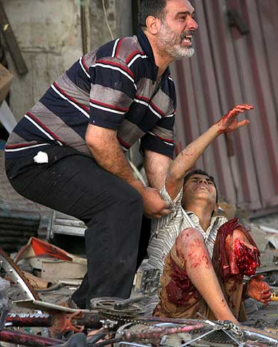 http://s3.amazonaws.com/giles/horribly_wounded_iraqi_child.jpg