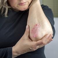 Atopic Dermatitis: Optimizing Outcomes