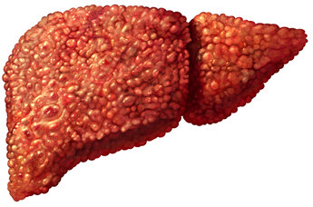 Managing Hepatitis Liver Damage
