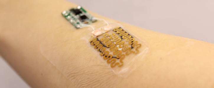 smart bandage,wound monitoring,wound microprocessor,hca news