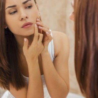 acne-other-skin-conditions-320x320