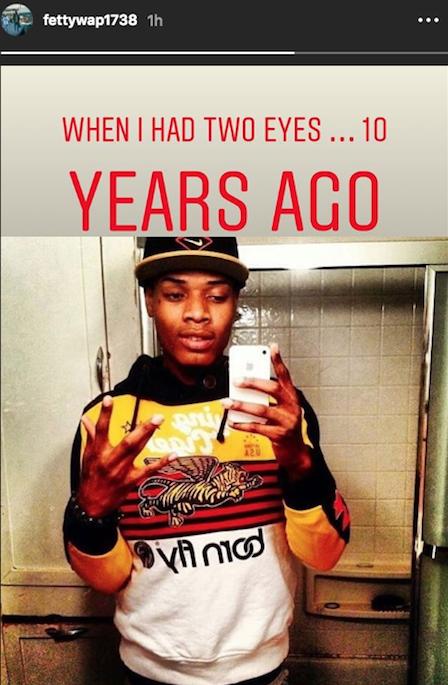 Fetty Wap Posts Throwback Photo Showing Off Prosthetic Eye