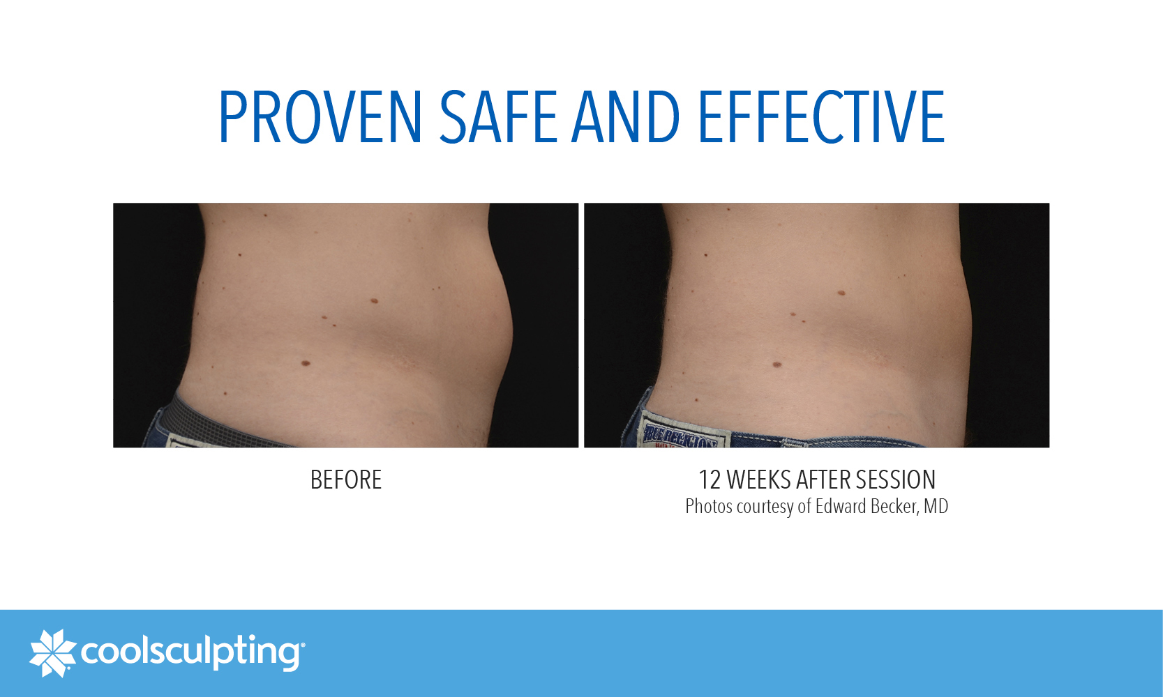 Coolsculpting west london before and after